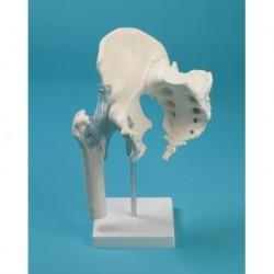 Modello anatomico d polmoni di un fumatore Erler Zimmer, modello R10061