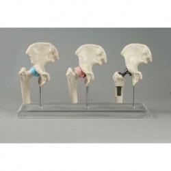 Erler Zimmer, modello anatomico di articolazione dell'anca, con protesi 1115
