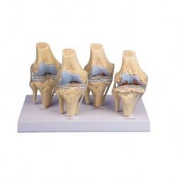 Erler Zimmer, modello anatomico di scheletro del bacino femminile a montaggio elastico 4054G
