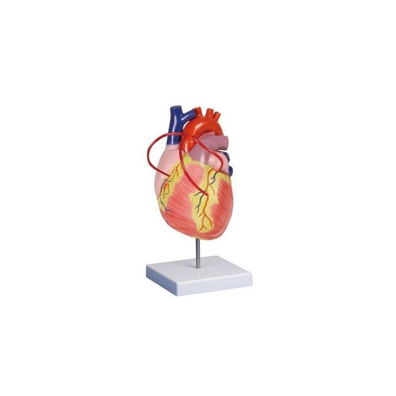 Erler Zimmer, modello anatomico di cuore con bypass,  ingrandito due volte, scomponibile in 2 parti G206