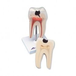 3B Scientific, modello di dente molare inferiore a due radici, con carie, in due parti  D10/4