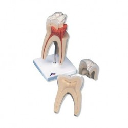 3B Scientific, modello di dente molare superiore a tre radici, in tre parti  D10/5