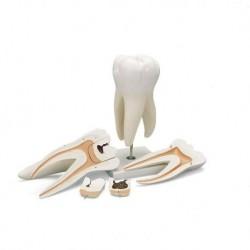3B Scientific, modello di dente molare superiore a tre radici, in 5 parti  D15