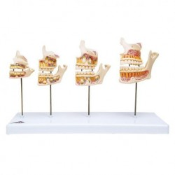 3B Scientific, modello anatomico di sviluppo della dentatura D20