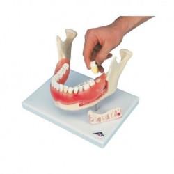 3B Scientific, modello anatomico di patologie dentali, ingrandito 2 volte, 21 pezzi D26
