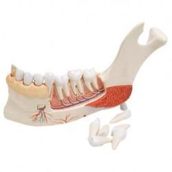 3B Scientific, modello anatomico di metà della mandibola con 8 denti cariati VE290