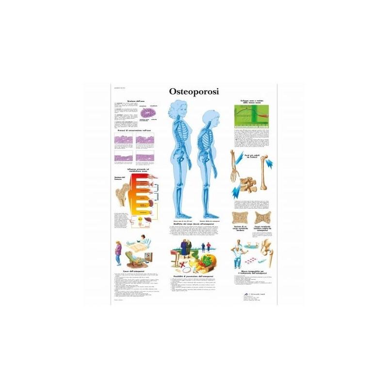 3B Scientific, tavola anatomica, Poster Osteoporosi (cod. VR4121L)