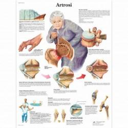 3B Scientific, tavola anatomica, Poster Artrosi (cod. VR4123UU)