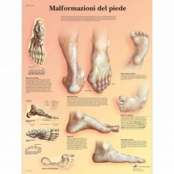 3B Scientific, tavola anatomica, Poster malformazioni di piede VR4185UU