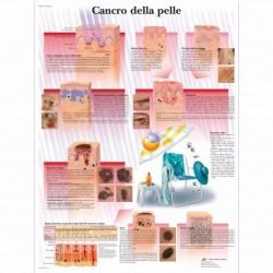 3B Scientific, tavola anatomica, Poster Cancro della pelle (cod. VR4295L)