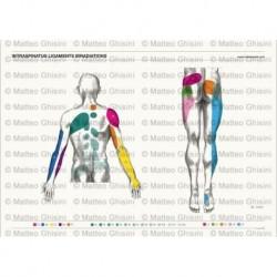 Osteoposter - Irradiazione Legamenti Interspinosi Dorsale