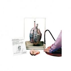 Modello anatomico di polmoni di un fumatore Erler Zimmer, modello R10061