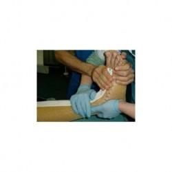 Immobilizzatore di piede, caviglia e gamba - Turbocast wrist zip