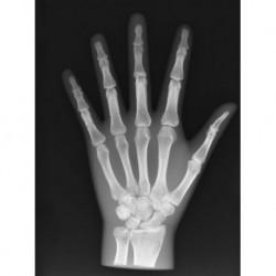 Simulatore per radiologia - Mano - Opaco - Erler Zimmer 7215