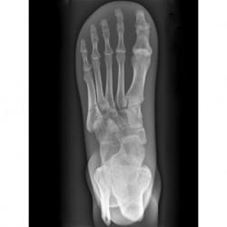 Simulatore per radiologia - Piede - Trasparente - Erler Zimmer 7230