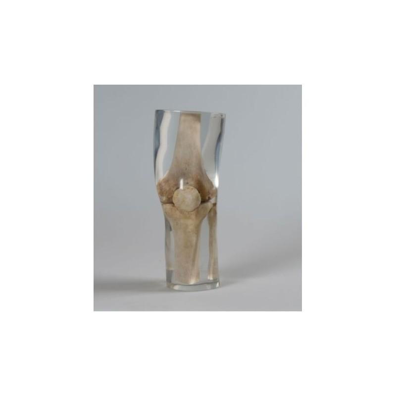 Simulatore per radiologia - Ginocchio - Trasparente - Erler Zimmer 7250