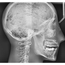 Simulatore per radiologia - Cranio con vertebre cervicali - Trasparente - Erler Zimmer 7300