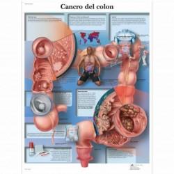 3B Scientific, tavola anatomica, Poster Cancro del Colon cod. VR4432L