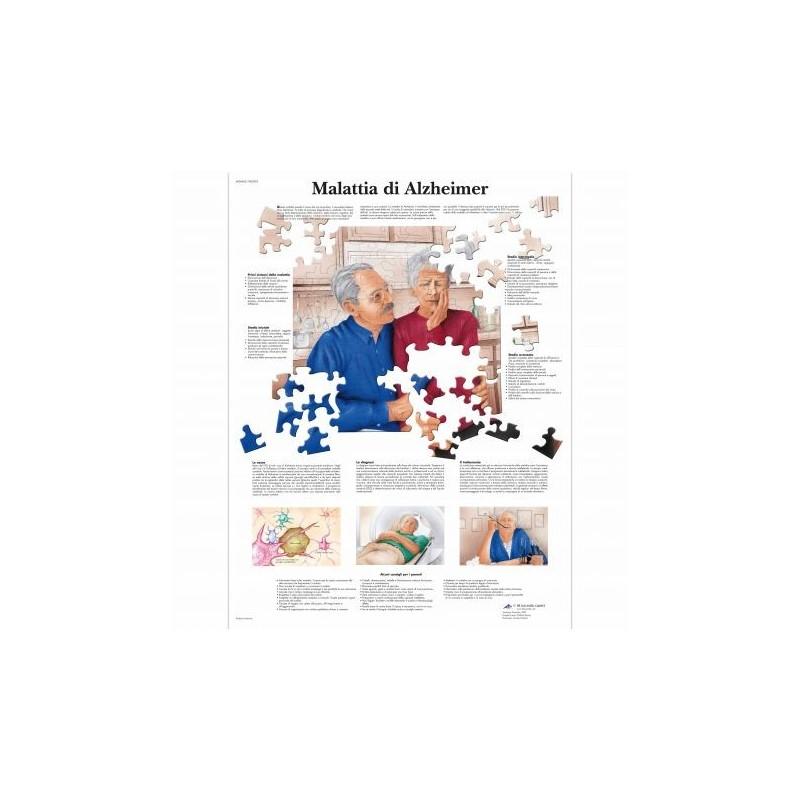 3B Scientific, tavola anatomica, Poster Malattia di Alzheimer cod. VR4628L