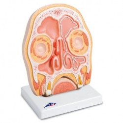 3B Scientific, tavola anatomica, Poster Epilessia cod. VR4626L
