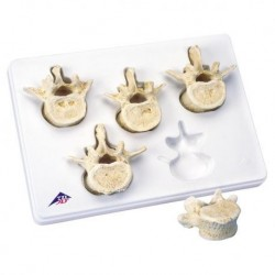 3B Scientific, Set con 5 vertebre lombari 3B BONElike™ A792