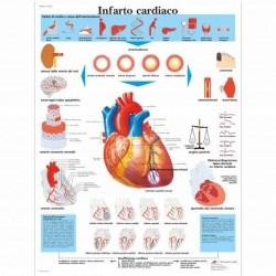 3B Scientific, tavola anatomica, Infarto Cardiaco (cod, VR4342UU)