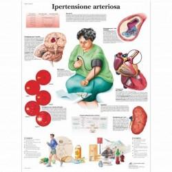 3B Scientific, tavola anatomica, Ipertensione Arteriosa (cod, VR4361L)