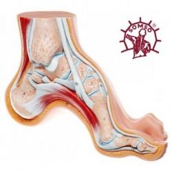 Piede Cavo - Modello anatomico SOMSO NS3