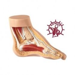 Piede Torto - Modello anatomico SOMSO NS4