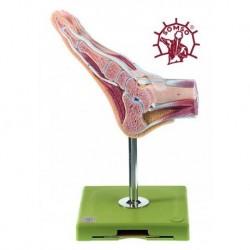 Sezione sagittale di un piede normale - Su cavalletto. Modello anatomico SOMSO NS8