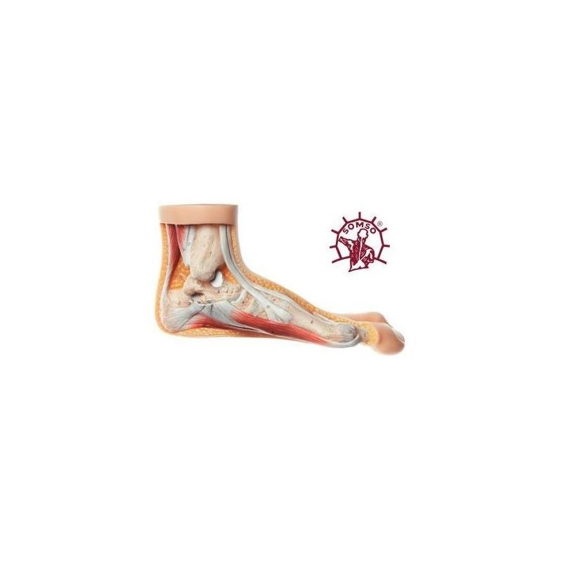 Piede con Alluce Valgo - Modello anatomico SOMSO NS5