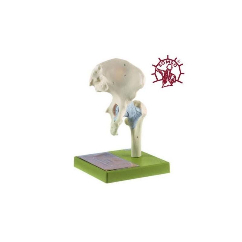 Articolazione dell'anca con legamenti - Modello anatomico SOMSO NS20