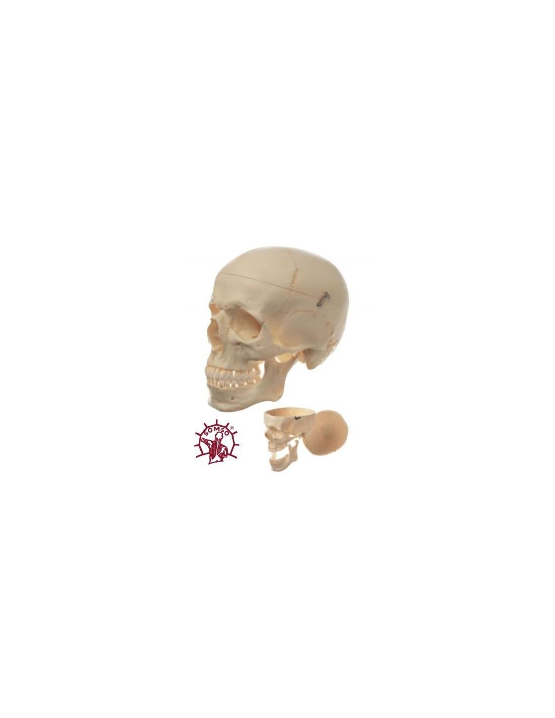 Erler Zimmer, modelo anatómico de cáncer de estómago humano con K83
