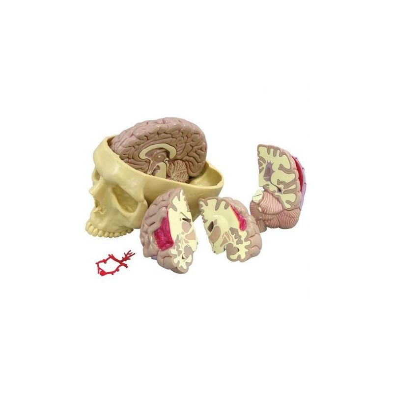 Modello anatomico di cervello umano con cranio 3B Scientific 1019542
