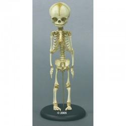 Cranio umano, modello classico scomponibile in 3 parti, Modello anatomico SOMSO QS7