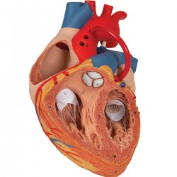 3B Scientific, heart pattern with bypass, enlarged 2 times, removable in 4  parts, G06