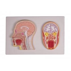 Erler Zimmer, sezione mediana e frontale della testa, C213