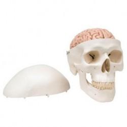 Erler Zimmer, modello anatomico, sezione frontale multipla del cervello umano