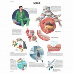 3B Scientific, tavola anatomica laminata Asma (cod, VR4328L)
