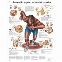 3B Scientific, tavola anatomica, Lesioni in seguito ad attività sportiva (cod, VR4188L)