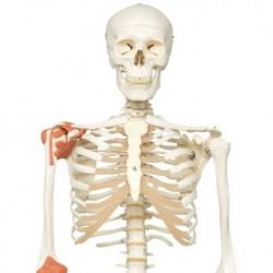 Erler Zimmer, modello anatomico di vertebra con osteoporosi