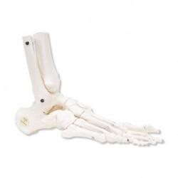 Erler Zimmer, modelo anatómico de la osteoporosis, de tamaño natural, sobre la base
