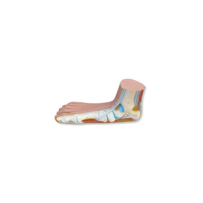 Modello anatomico di Piede piatto (pes planus) 3B Scientific M31