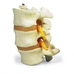 3 vertebre lombari, 3B Scientific, montaggio elastico A76/8