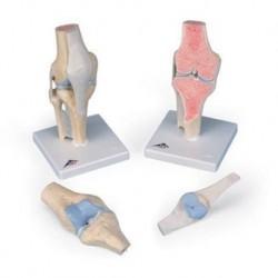 3B Scientific, modello anatomico della sezione articolare del ginocchio, in 3 parti A89