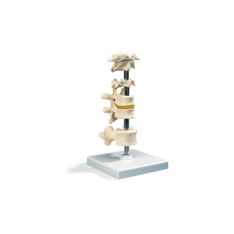 3b Scientific, modello anatomico di 6 vertebre A75