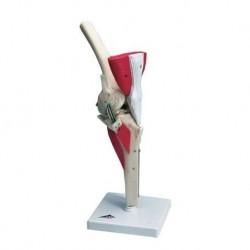 Erler Zimmer, modello anatomico di 4 stadi dell'osteoartrite della spalla