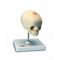 Erler Zimmer, modelo anatômico de articulação do esqueleto da mão com o sistema vascular, em um carrinho