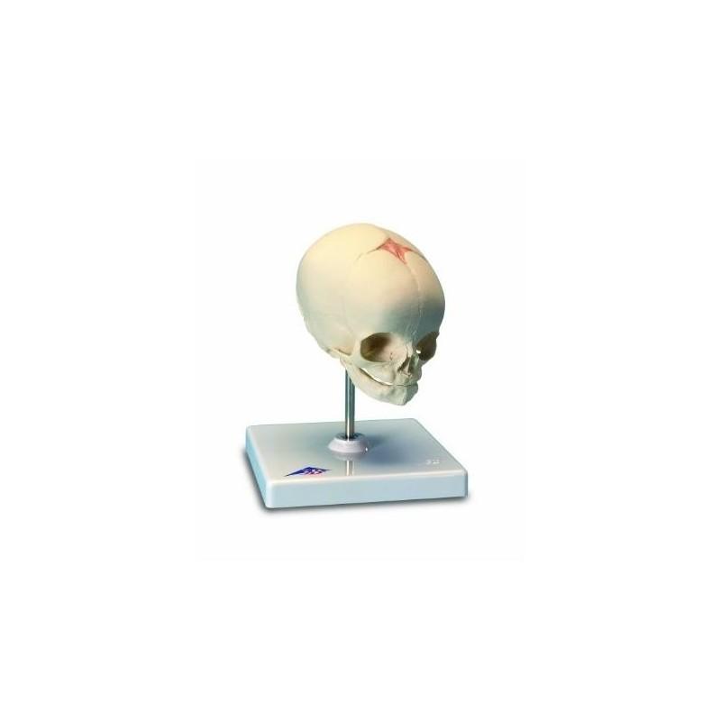 Cranio di feto, su cavalletto (cod, A26)