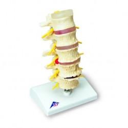 3B Scientific, Stadi dell'ernia del disco intervertebrale e degenerazione della vertebra A795